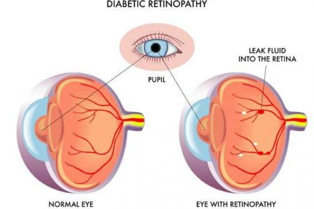 Dilated Eye Exams KEY in Preventing Diabetic Eye Disease