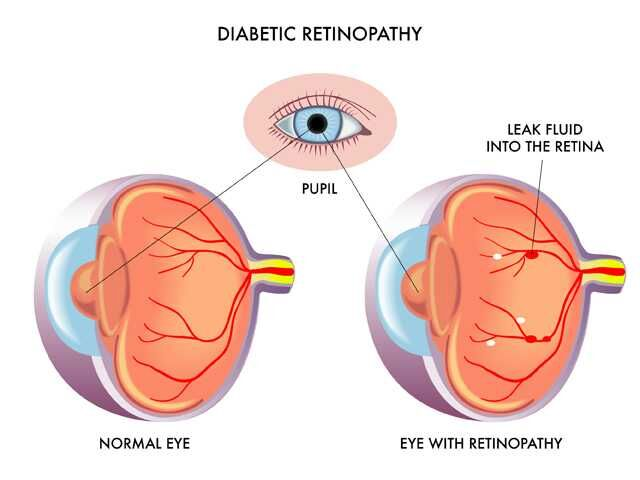 ae16885c963 Dilated Eye Exams KEY in Preventing Diabetic Eye Disease - BW Primary Care